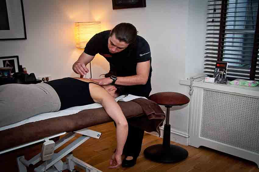 East London Physiotherapy - Chris McLean Acupuncture